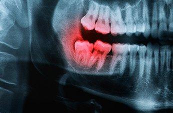tratamientos-periodoncia-la-linea-algeciras-uniclinic