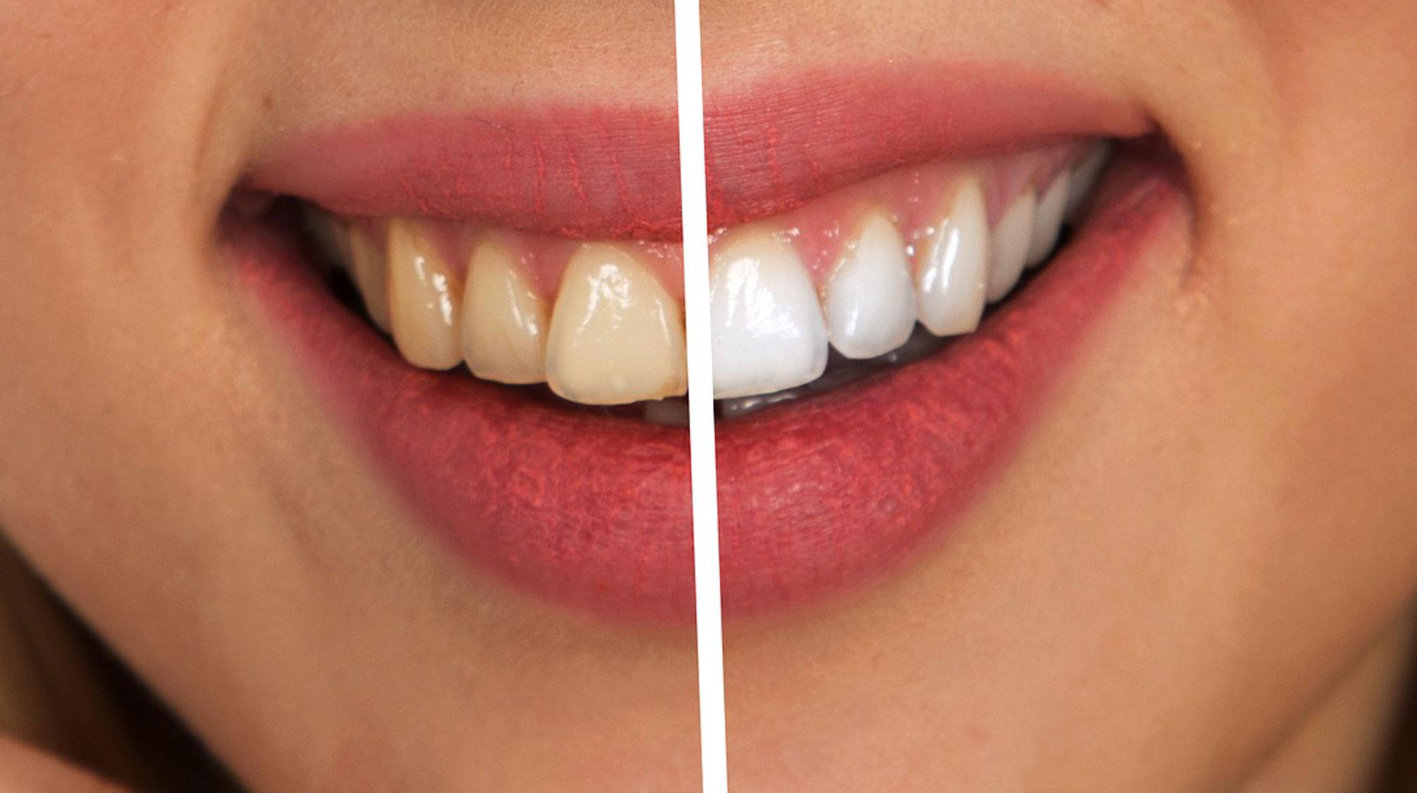 blanqueamiento-dental-laser-la-linea-uniclinic
